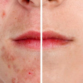 How to reduce redness on acne