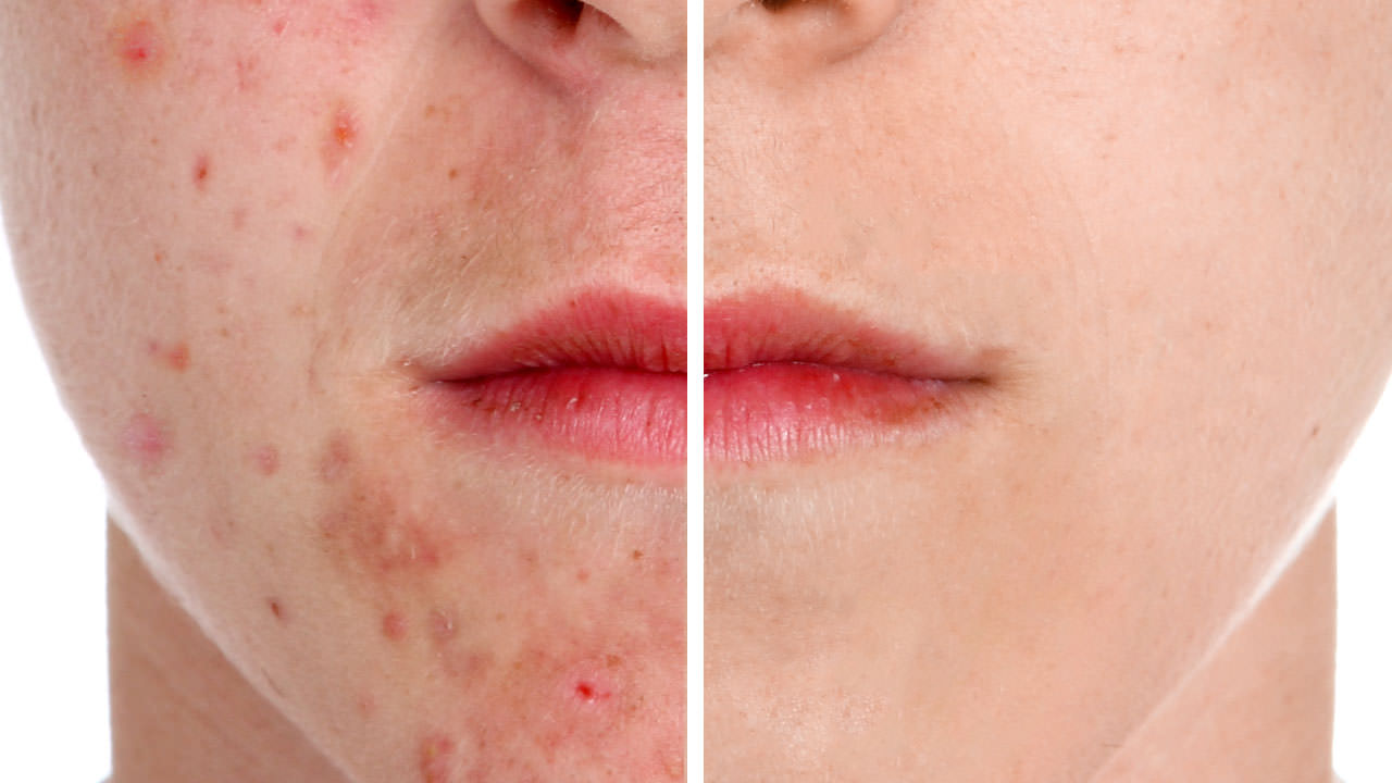 How To Remove Acnes