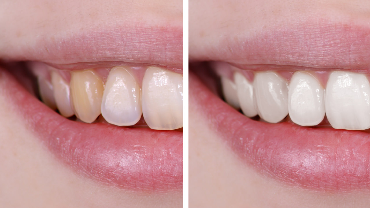 How to Whiten Teeth in Photoshop - PHLEARN