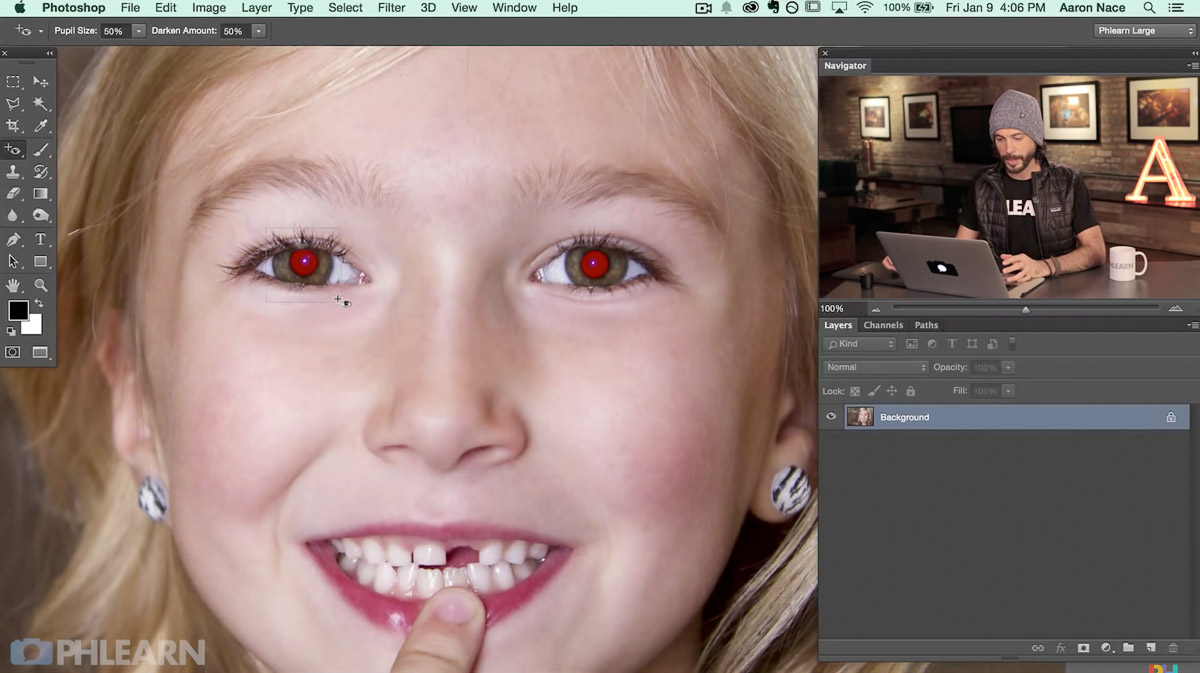 steps to remove red eye
