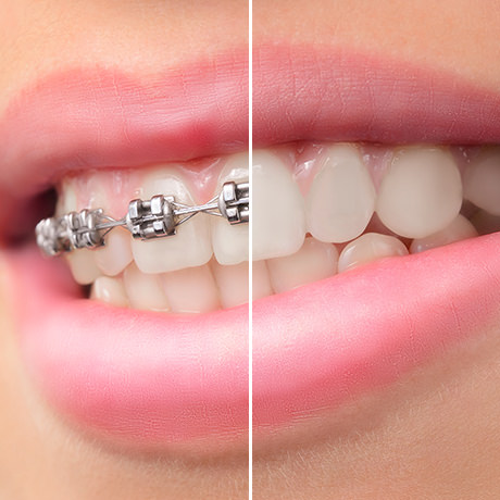 How to Remove Braces in Photoshop