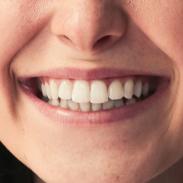 whiten teeth photoshop